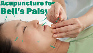 Contra Costa County Acupuncturists